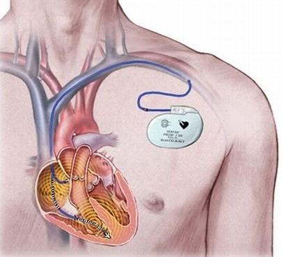 01-heart-powered-pacemaker-insulin pumping by nano generator