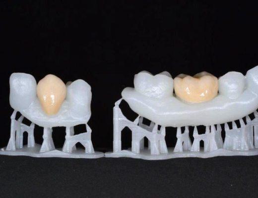 3D-printing-dentistry-3D-printing-dental-ceramics